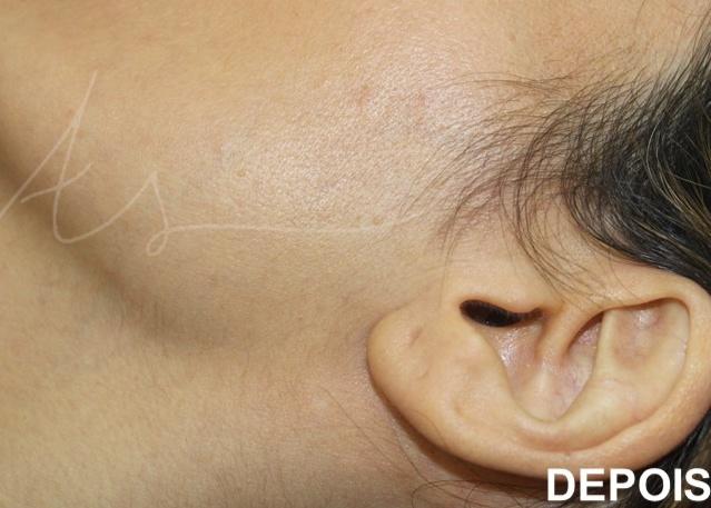 Depilaçao laser facial 4