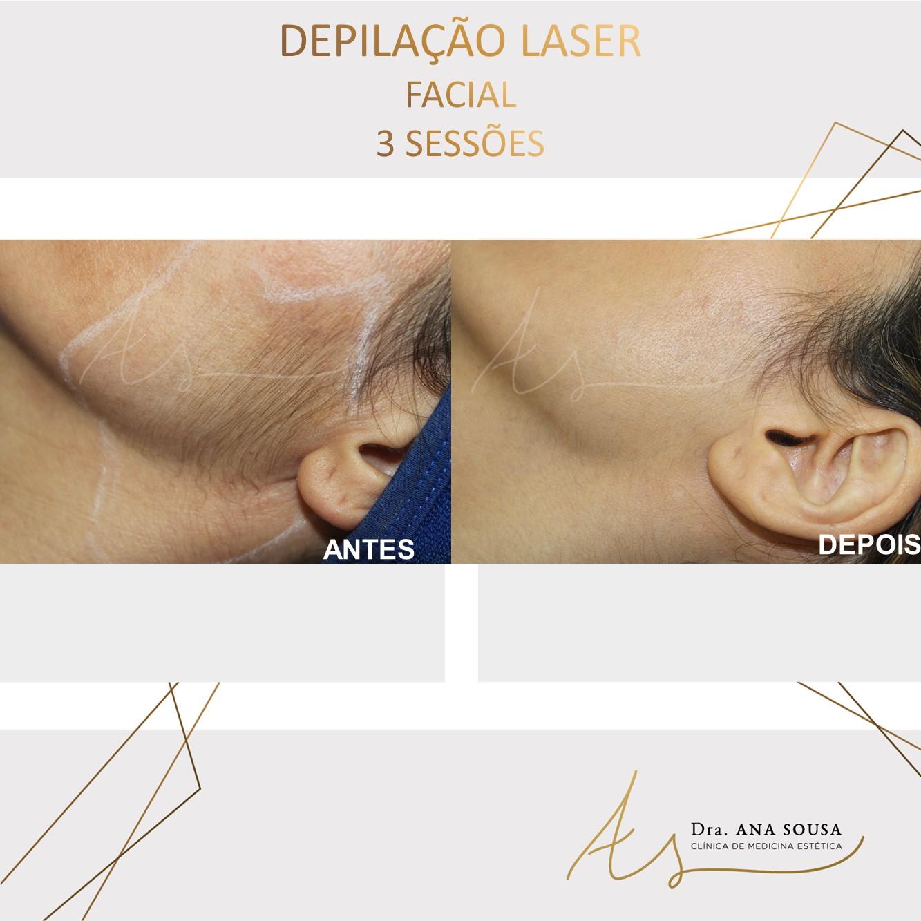 Depilaçao laser facial
