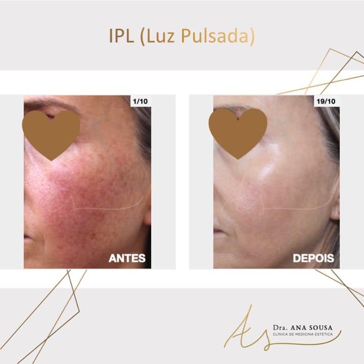 IPL - Luz Pulsada