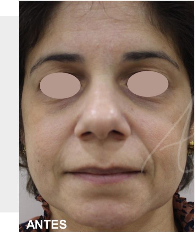Skinbooster 1