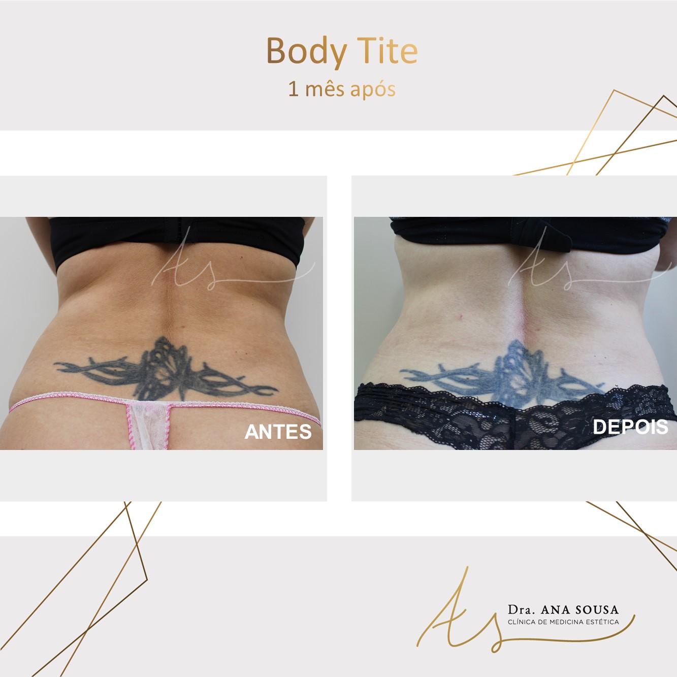body tite