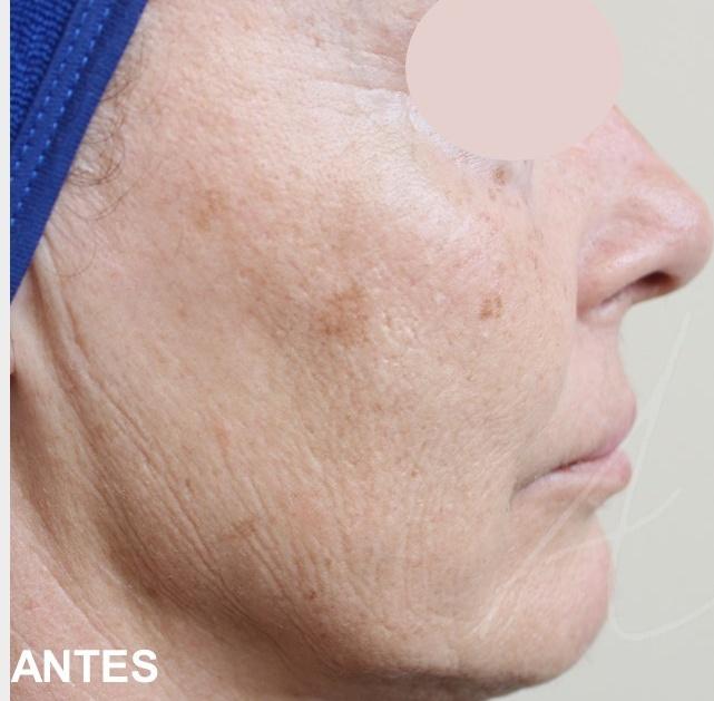 laser co2 facial