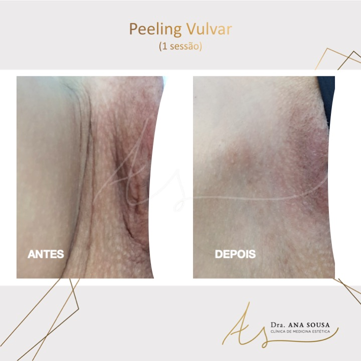 peeling vulvar