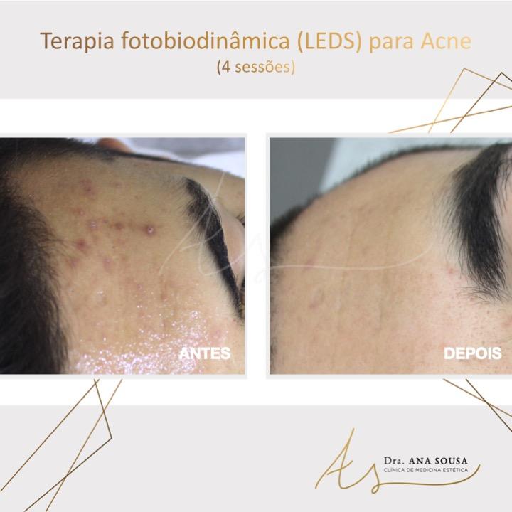 Terapia Fitobiodinâmica (LEDS)