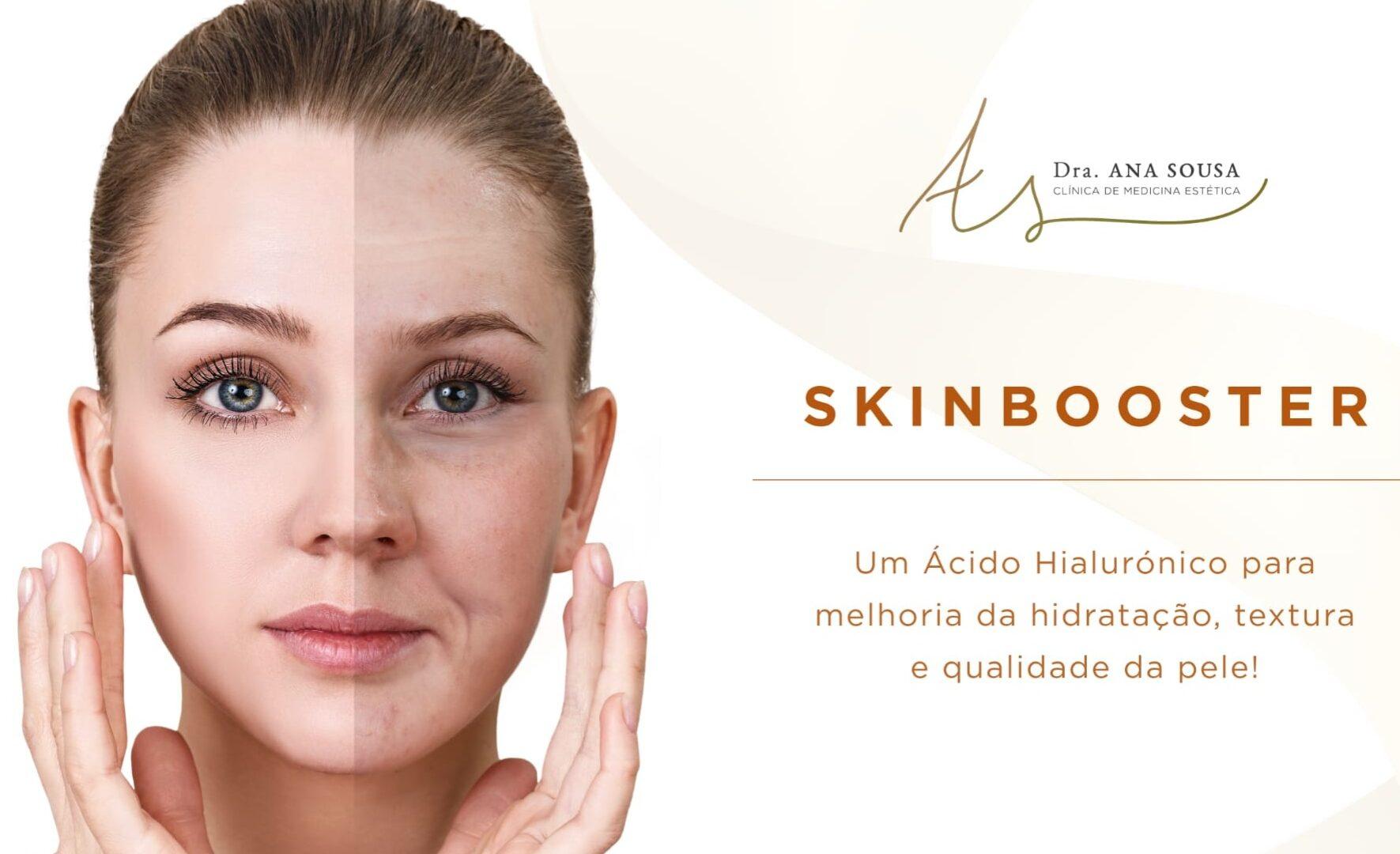 skinbooster - tratamento facial