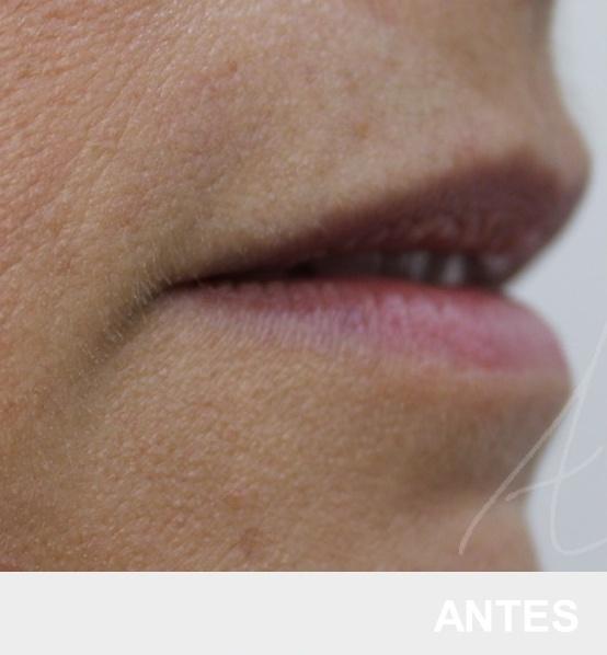 preenchimento labial - ácido hialurónico - antes