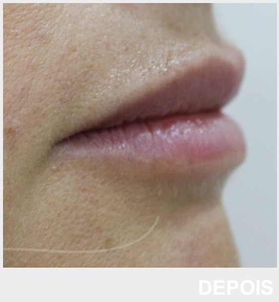 preenchimento labial - ácido hialurónico - depois